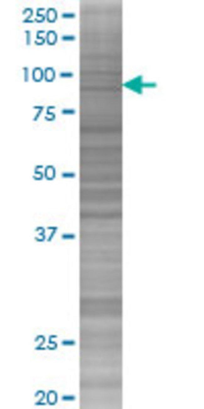 AbnovaARAF 293T Cell Transient Overexpression Lysate (Denatured) 100μL:Protein
