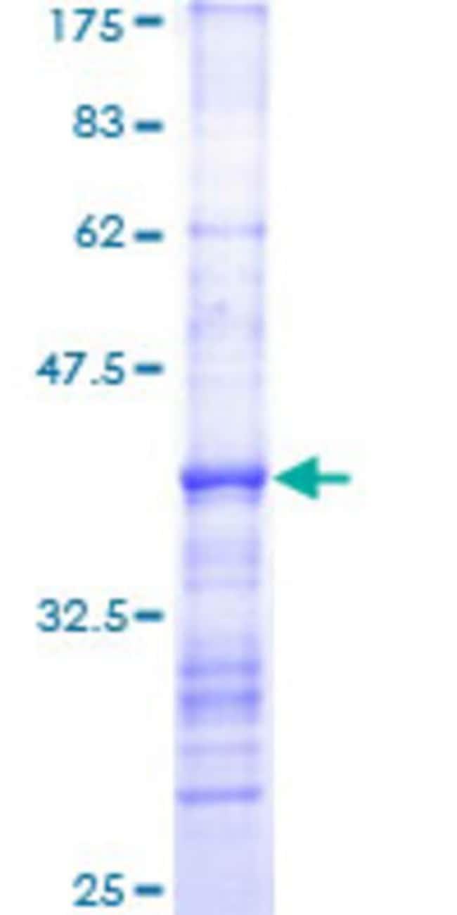 Abnova™Human RHOA Partial ORF (AAH01360.1, 91 a.a. - 190 a.a.) Recombinant Protein with GST-tag at N-terminal 10μg Abnova™Human RHOA Partial ORF (AAH01360.1, 91 a.a. - 190 a.a.) Recombinant Protein with GST-tag at N-terminal