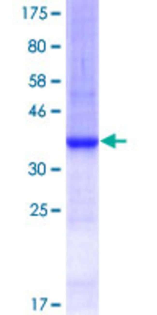 AbnovaHuman ARHGAP1 Partial ORF (AAH18118, 340 a.a. - 439 a.a.) Recombinant