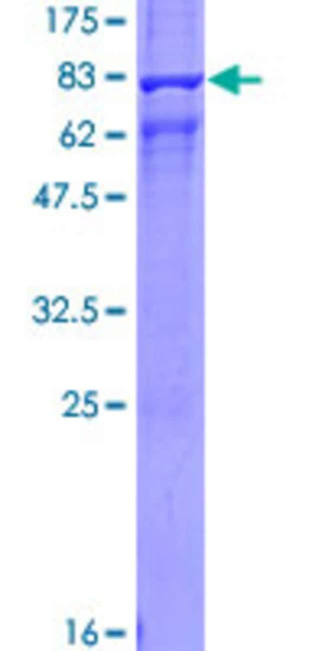 Abnova™Human ARRB1 Full-length ORF (NP_004032.2, 1 a.a. - 418 a.a.) Recombinant Protein with GST-tag at N-terminal 25μg Abnova™Human ARRB1 Full-length ORF (NP_004032.2, 1 a.a. - 418 a.a.) Recombinant Protein with GST-tag at N-terminal