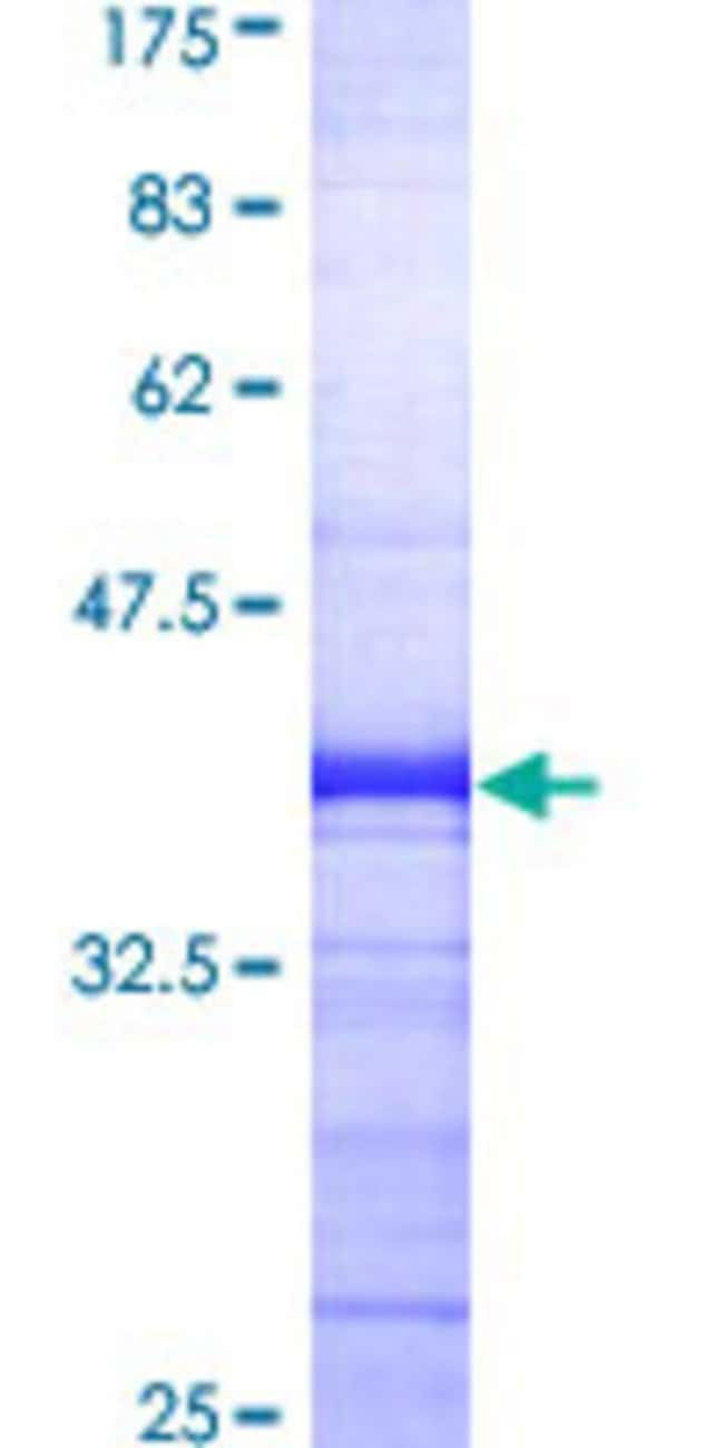 Abnova™ Human ARRB2 Partial ORF (AAH07427, 300 a.a. - 409 a.a.) Recombinant Protein with GST-tag at N-terminal 25μg Abnova™ Human ARRB2 Partial ORF (AAH07427, 300 a.a. - 409 a.a.) Recombinant Protein with GST-tag at N-terminal