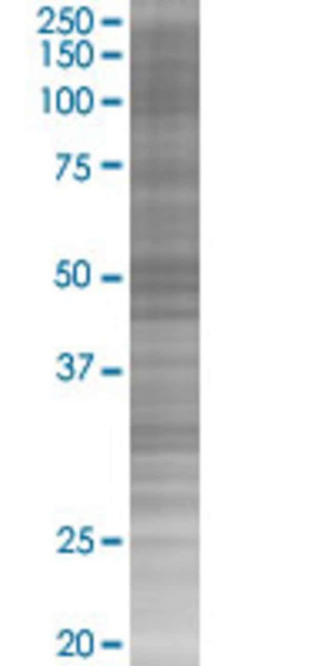 AbnovaARRB2 293T Cell Transient Overexpression Lysate (Denatured) 100μL:Protein
