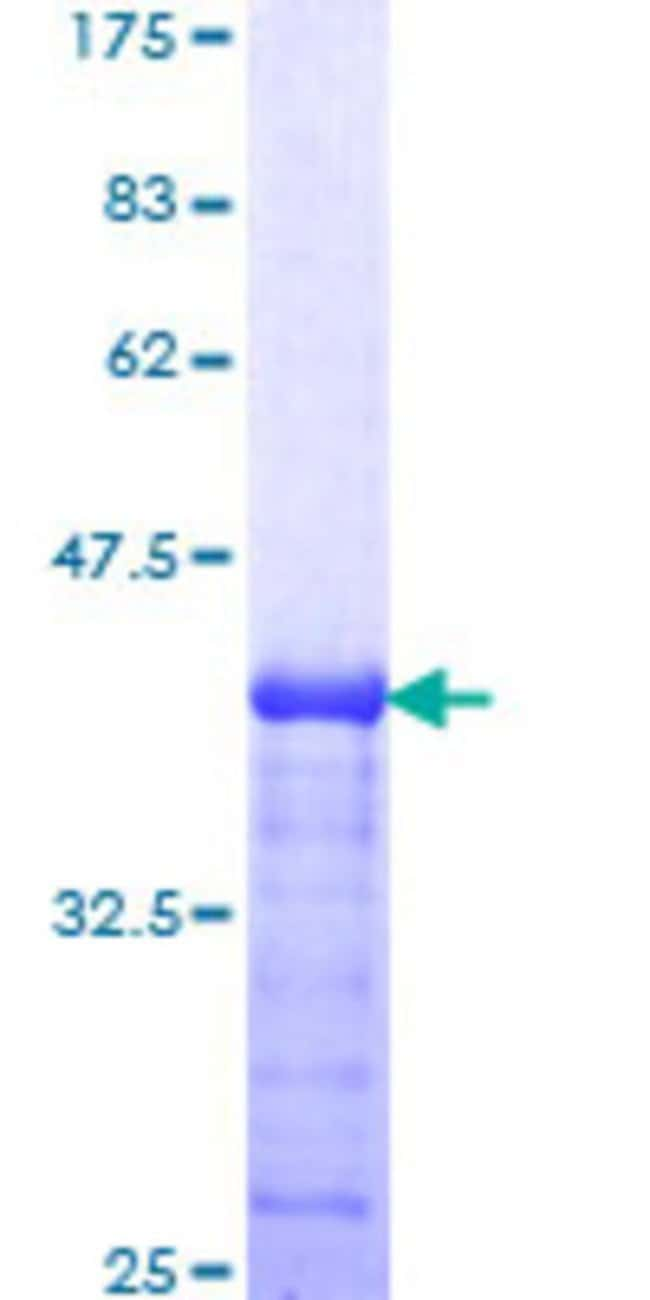 Abnova™Human ARSA Partial ORF (AAH14210, 398 a.a. - 507 a.a.) Recombinant Protein with GST-tag at N-terminal 25μg Abnova™Human ARSA Partial ORF (AAH14210, 398 a.a. - 507 a.a.) Recombinant Protein with GST-tag at N-terminal