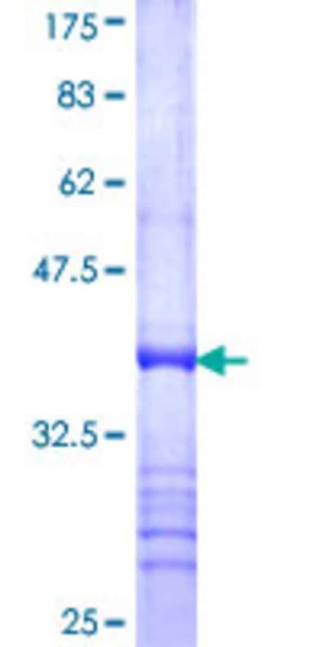 AbnovaHuman ARSE Partial ORF (NP_000038, 490 a.a. - 589 a.a.) Recombinant