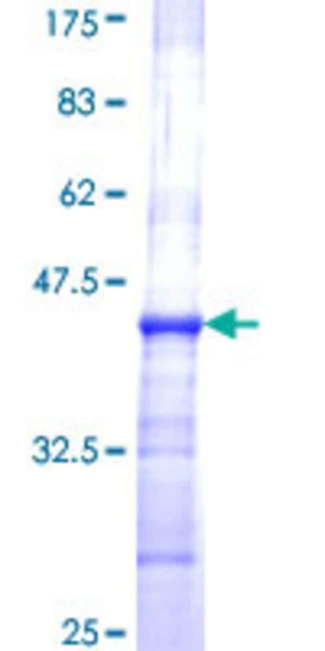 AbnovaHuman ART3 Partial ORF (NP_001170, 29 a.a. - 138 a.a.) Recombinant
