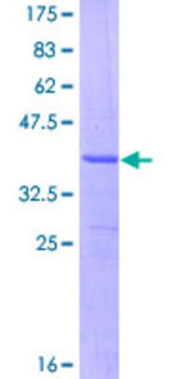 AbnovaHuman ASAH1 Partial ORF (NP_808592, 25 a.a. - 124 a.a.) Recombinant