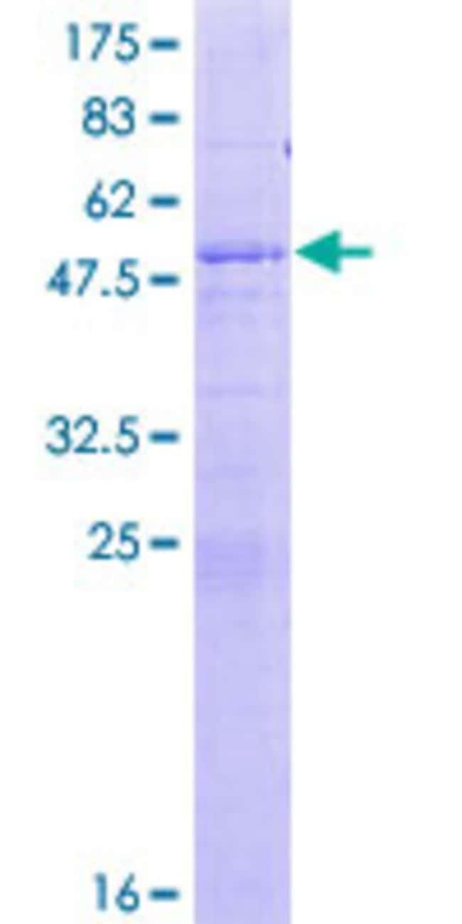 AbnovaHuman ASPH Full-length ORF (NP_115856.1, 1 a.a. - 210 a.a.) Recombinant