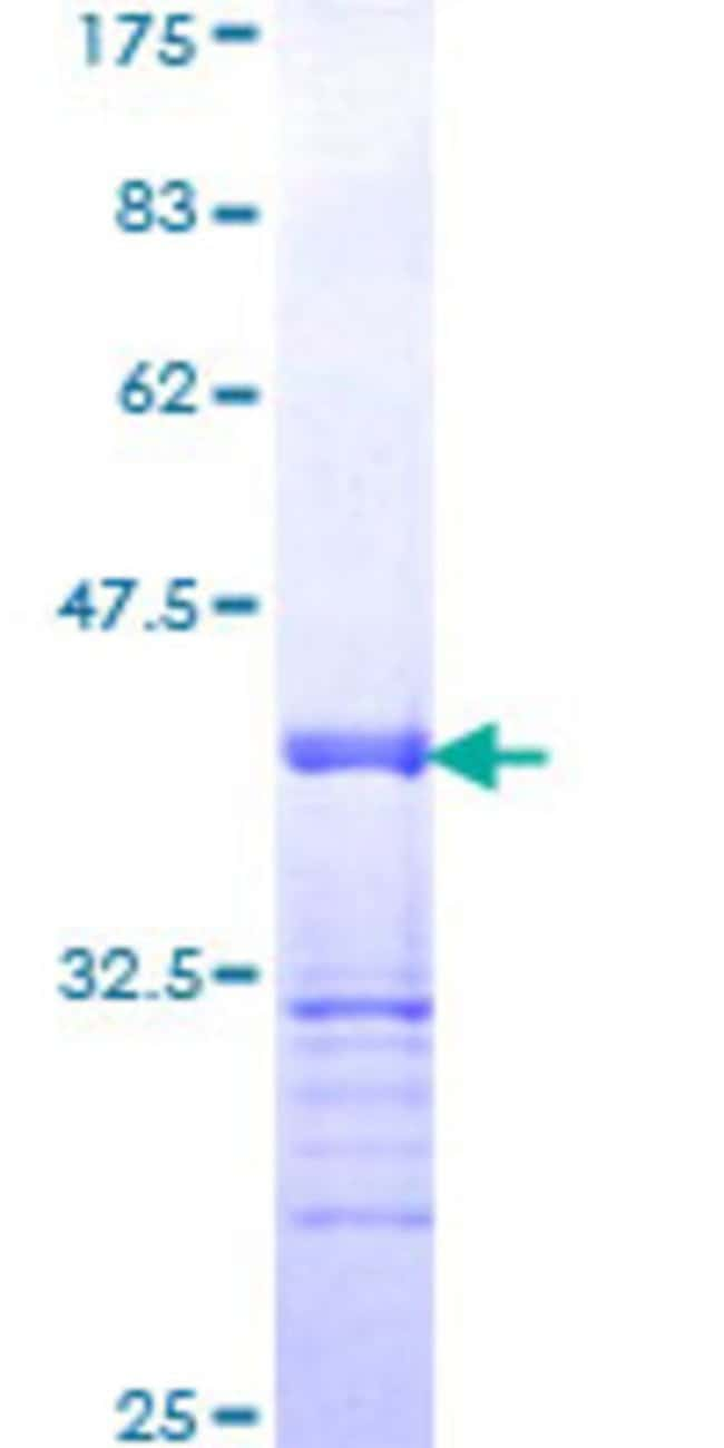 AbnovaHuman ATF3 Partial ORF (NP_001665, 1 a.a. - 90 a.a.) Recombinant