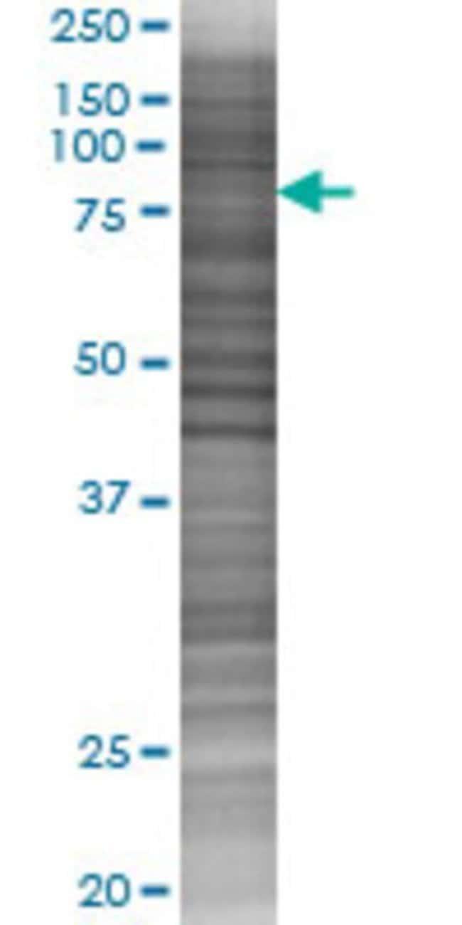 AbnovaATF4 293T Cell Transient Overexpression Lysate (Denatured) 100μL:Protein