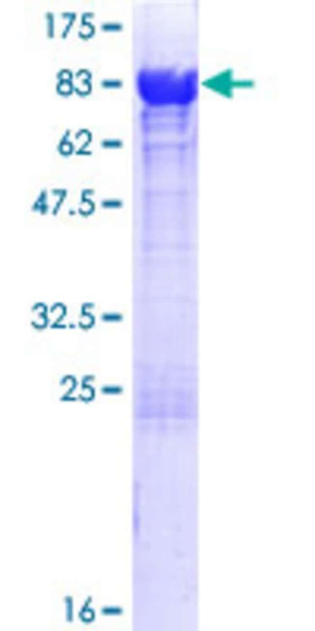 AbnovaHuman ATIC Full-length ORF (NP_004035.2, 1 a.a. - 592 a.a.) Recombinant