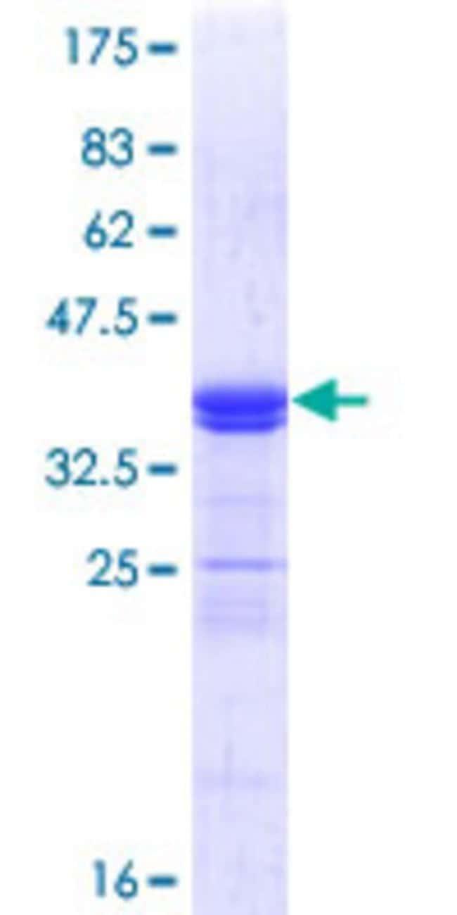 AbnovaHuman ATOH1 Partial ORF (NP_005163.1, 266 a.a. - 354 a.a.) Recombinant