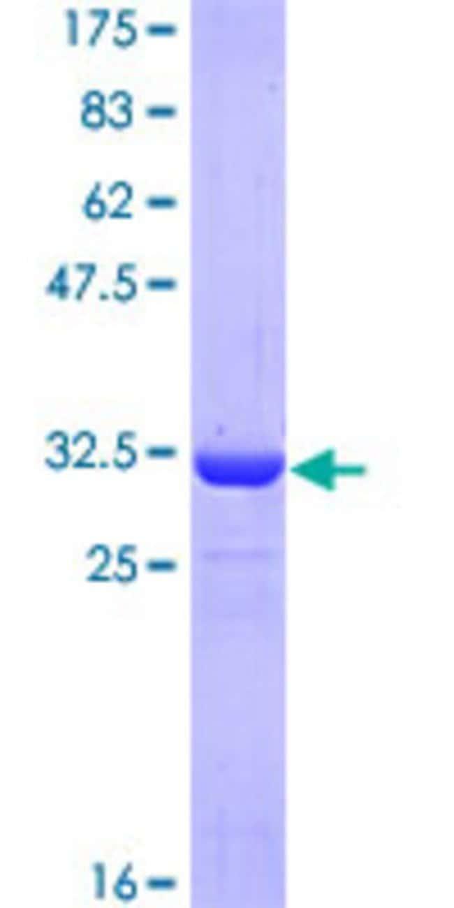 AbnovaHuman ATOX1 Partial ORF (NP_004036, 1 a.a. - 68 a.a.) Recombinant