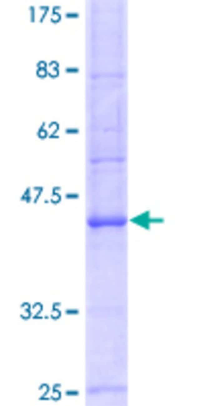 AbnovaHuman ATP1A3 Partial ORF (NP_689509.1, 879 a.a. - 984 a.a.) Recombinant