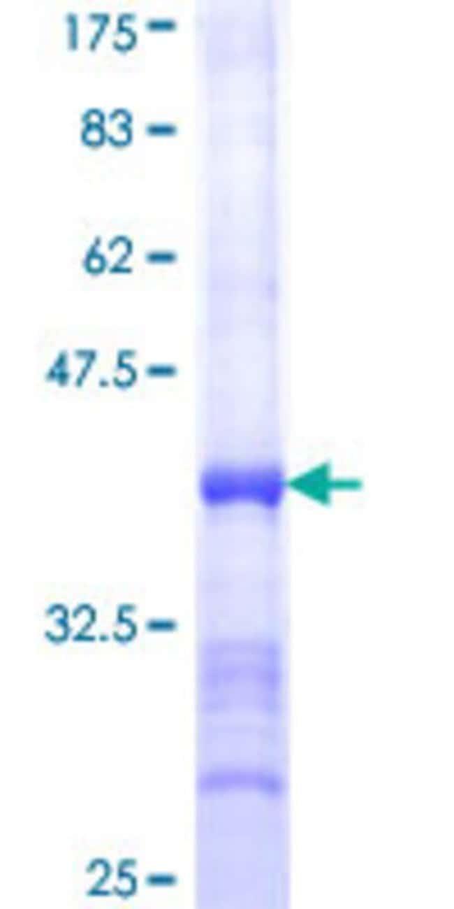 AbnovaHuman ATP2A1 Partial ORF (NP_775293, 522 a.a. - 612 a.a.) Recombinant