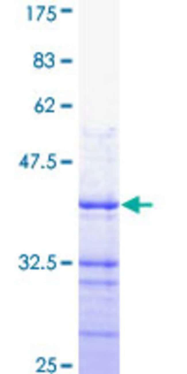 AbnovaHuman ATP2B4 Partial ORF (NP_001675, 1 a.a. - 92 a.a.) Recombinant