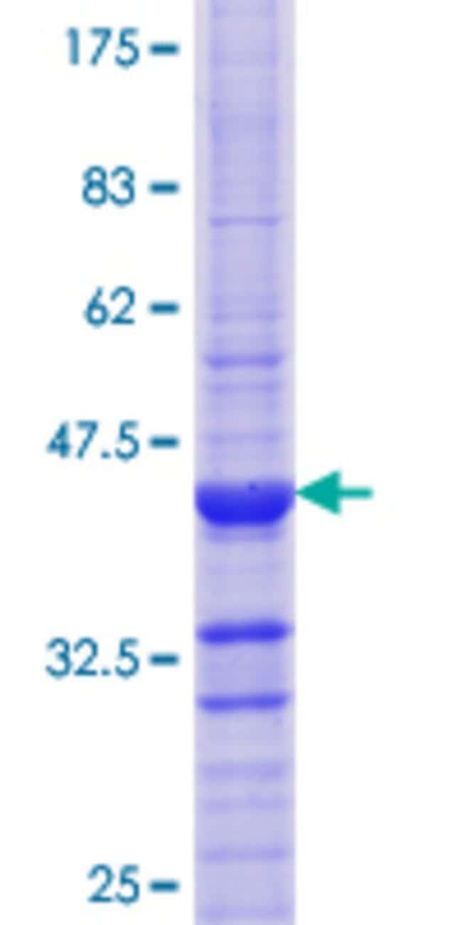 AbnovaHuman ATP4B Partial ORF (NP_000696.1, 67 a.a. - 176 a.a.) Recombinant