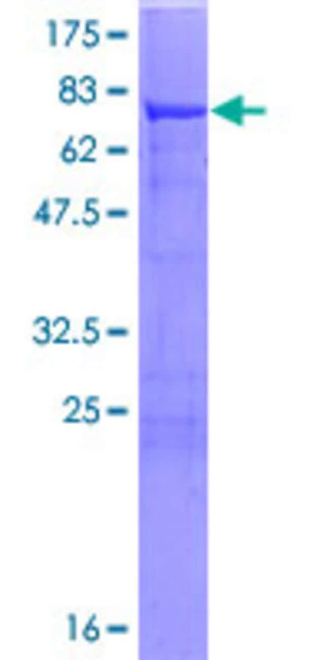 AbnovaHuman ALDH7A1 Full-length ORF (NP_001173.1, 1 a.a. - 511 a.a.) Recombinant