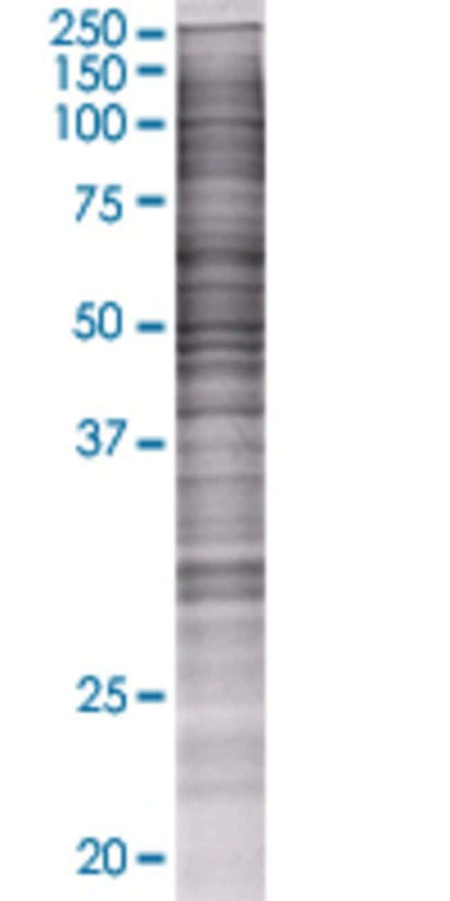 AbnovaATP5B 293T Cell Transient Overexpression Lysate (Denatured) (T01)