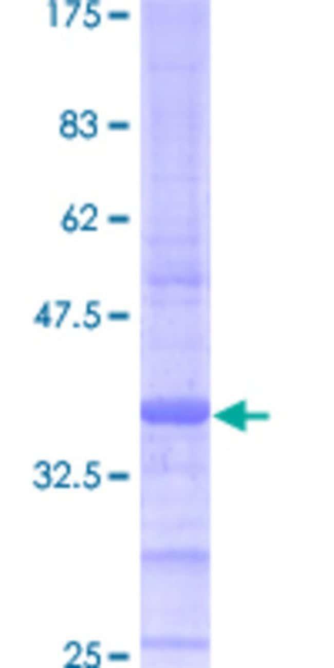 AbnovaHuman ATP5J Full-length ORF (AAH01178, 1 a.a. - 108 a.a.) Recombinant