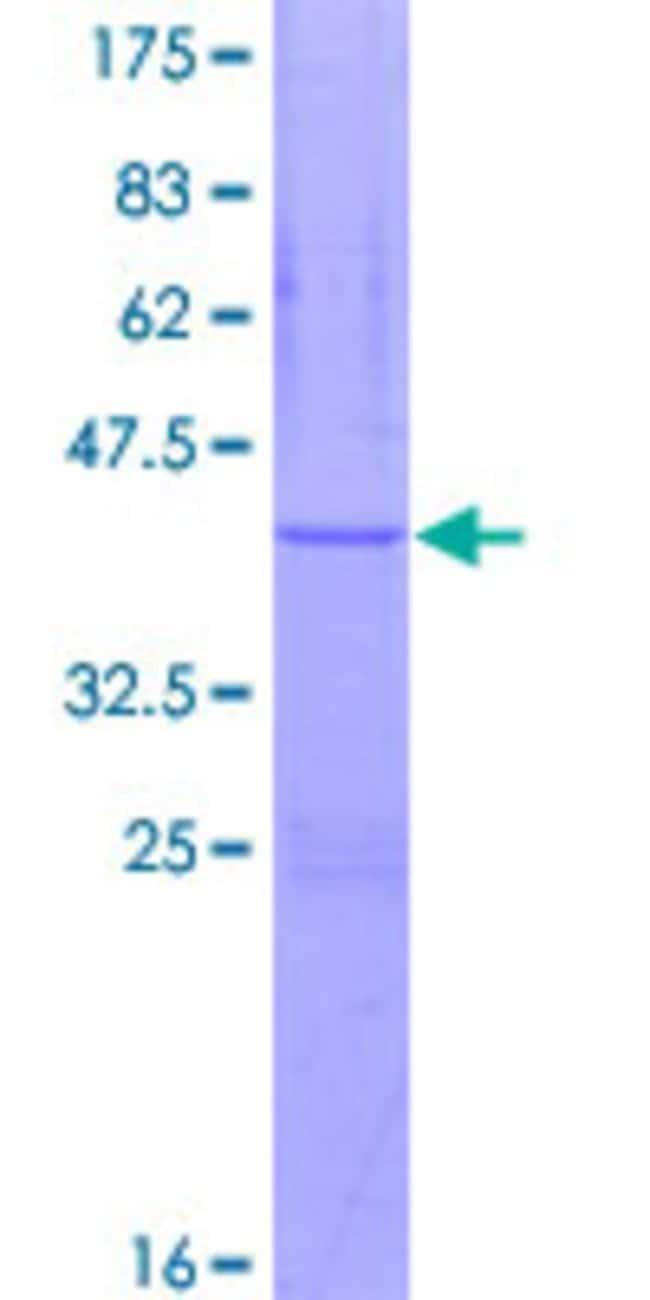 AbnovaHuman ATP5J Full-length ORF (NP_001003696.1, 1 a.a. - 108 a.a.) Recombinant