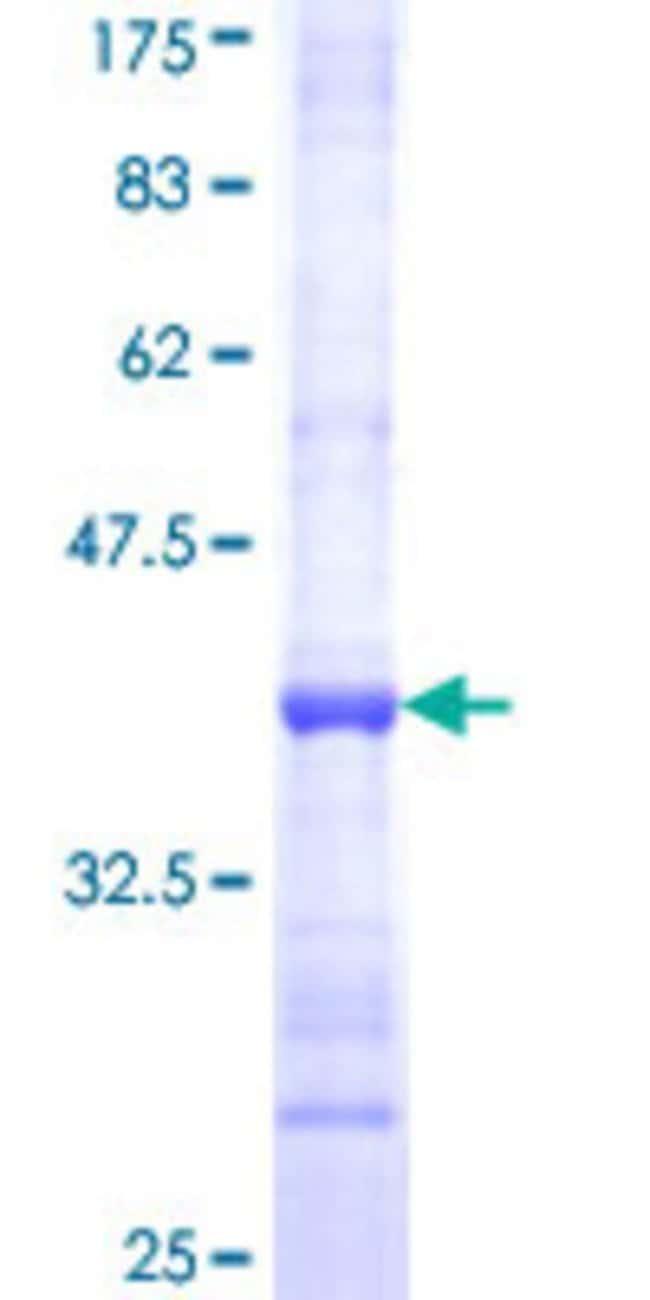 AbnovaHuman ATP5J Partial ORF (NP_001003696, 9 a.a. - 108 a.a.) Recombinant