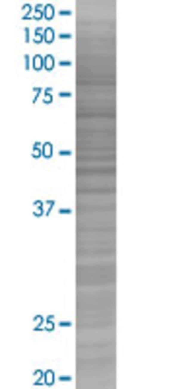 AbnovaATP6V1B1 293T Cell Transient Overexpression Lysate (Denatured) 100μL:Protein