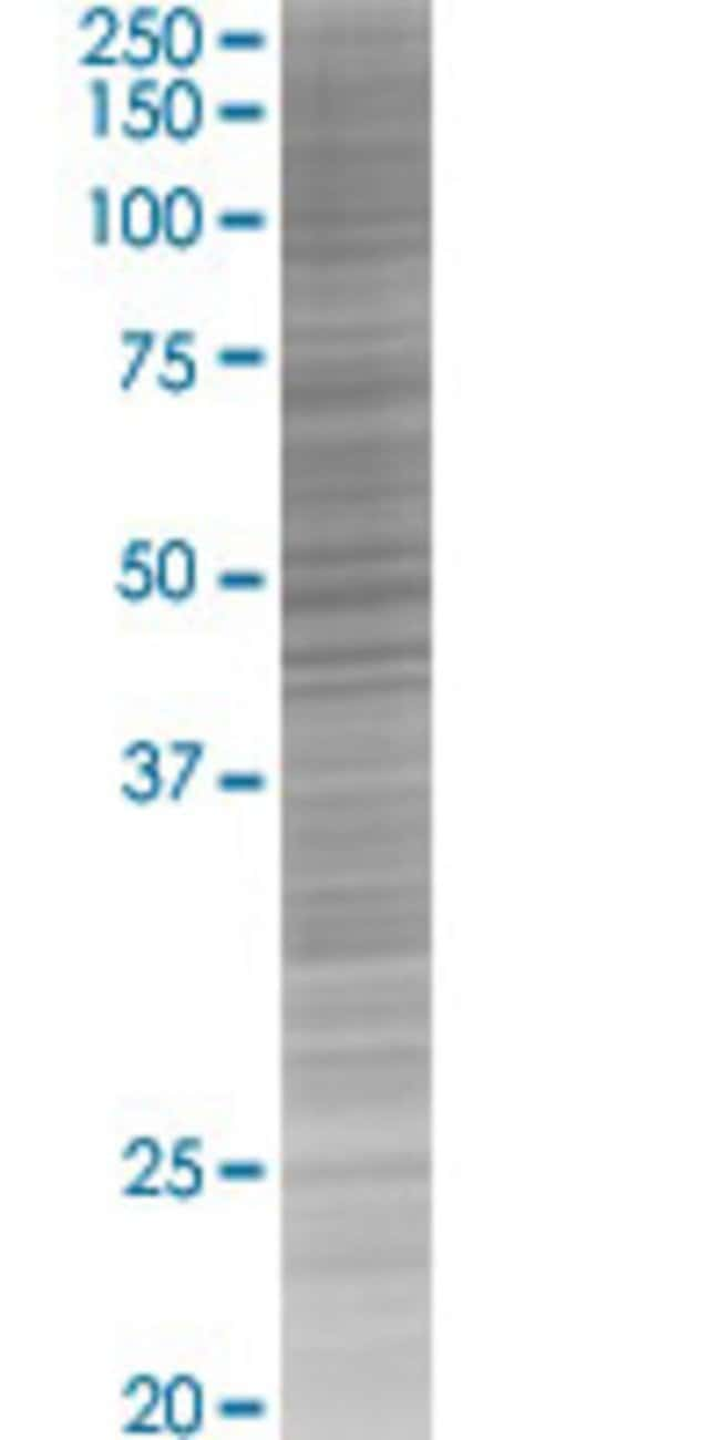 AbnovaATP6V1C1 293T Cell Transient Overexpression Lysate (Denatured) 100μL:Protein