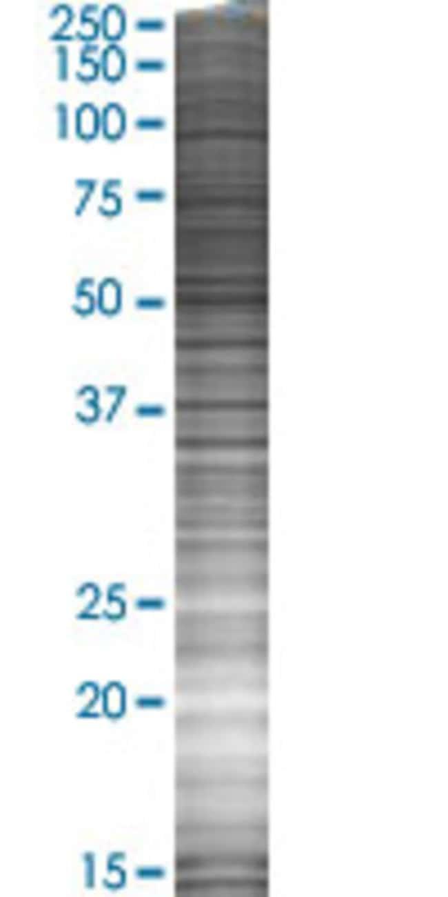 AbnovaATP6V0B 293T Cell Transient Overexpression Lysate (Denatured) 100μL:Protein