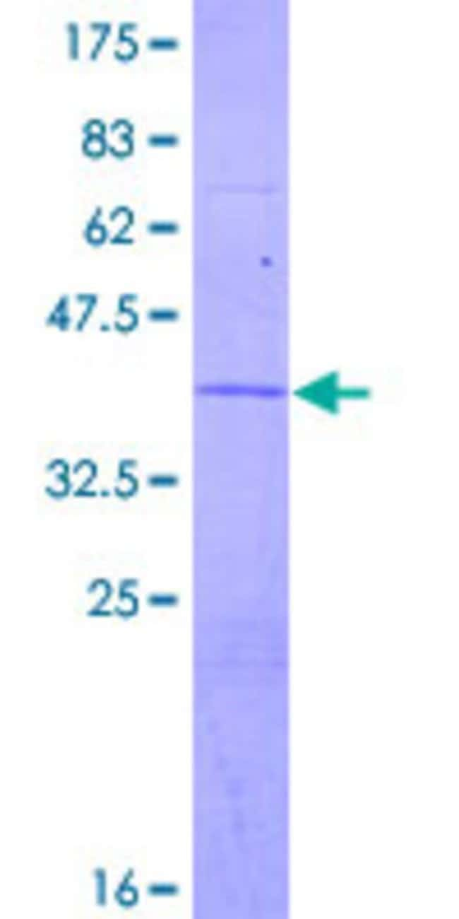 Abnova™Human ATP6V1G2 Full-length ORF (NP_569730.1, 1 a.a. - 118 a.a.) Recombinant Protein with GST-tag at N-terminal 25μg Abnova™Human ATP6V1G2 Full-length ORF (NP_569730.1, 1 a.a. - 118 a.a.) Recombinant Protein with GST-tag at N-terminal