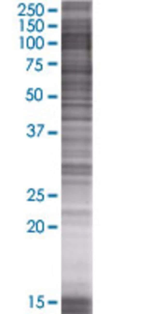AbnovaATP6AP1 293T Cell Transient Overexpression Lysate (Denatured) 100μL:Protein