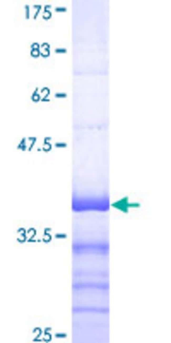 Abnova™ Human ATP7A Partial ORF (NP_000043, 1406 a.a. - 1500 a.a.) Recombinant Protein with GST-tag at N-terminal 25μg Abnova™ Human ATP7A Partial ORF (NP_000043, 1406 a.a. - 1500 a.a.) Recombinant Protein with GST-tag at N-terminal
