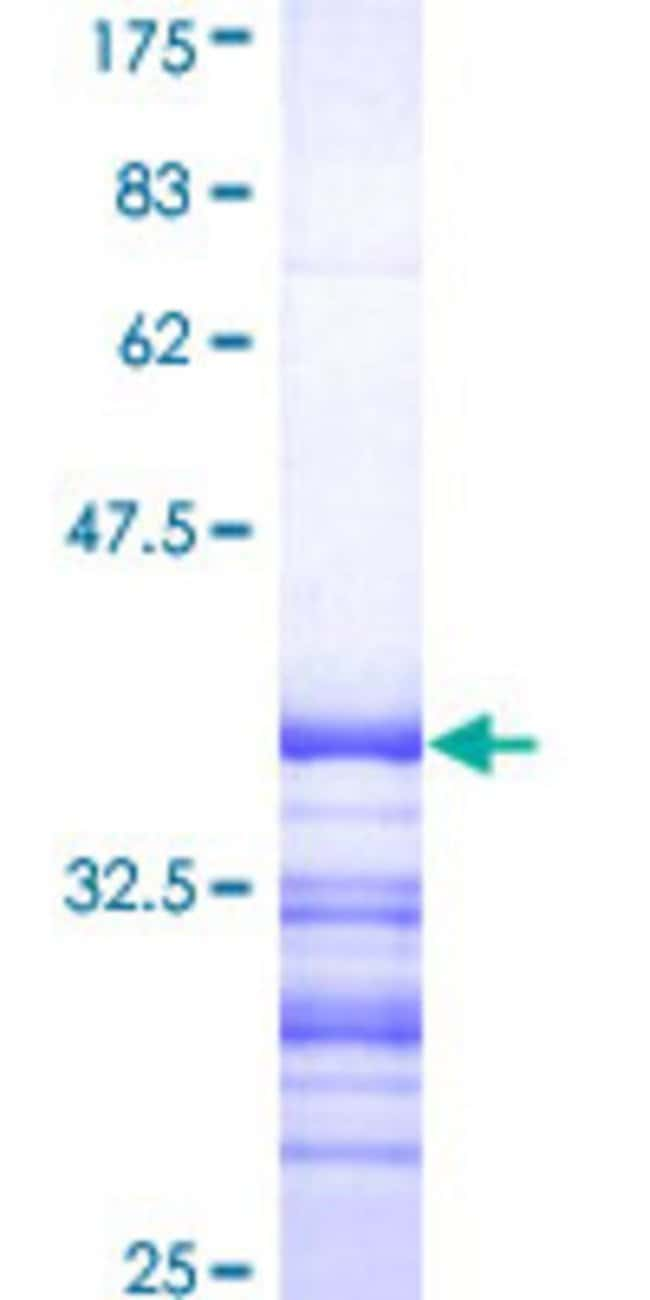 AbnovaHuman ATP7B Partial ORF (NP_000044, 1372 a.a. - 1465 a.a.) Recombinant