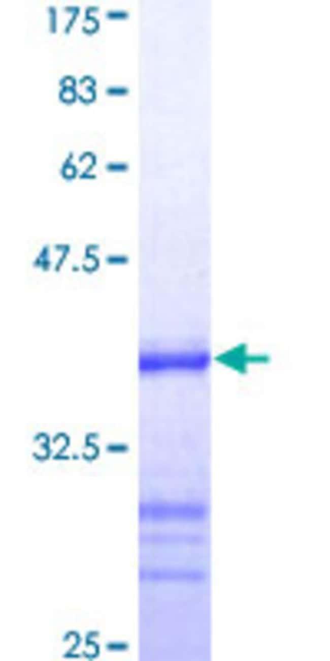 AbnovaHuman ATRX Partial ORF (NP_000480, 2311 a.a. - 2410 a.a.) Recombinant