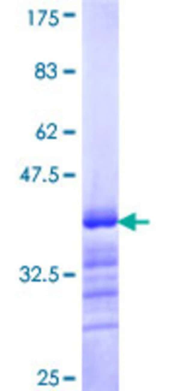 Abnova™Human BACH1 Partial ORF (NP_996749, 396 a.a. - 492 a.a.) Recombinant Protein with GST-tag at N-terminal 25μg Abnova™Human BACH1 Partial ORF (NP_996749, 396 a.a. - 492 a.a.) Recombinant Protein with GST-tag at N-terminal