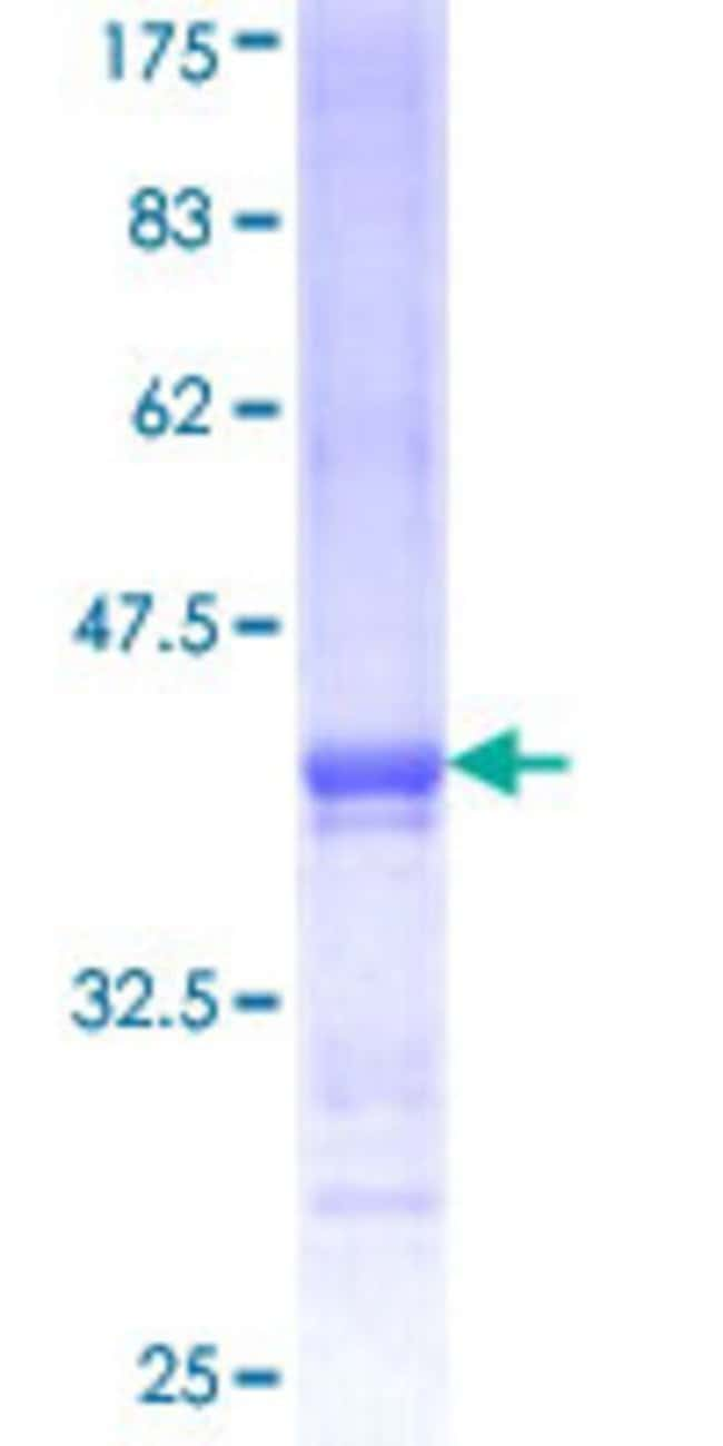 Abnova™Human BAI2 Partial ORF (NP_001694, 22 a.a. - 108 a.a.) Recombinant Protein with GST-tag at N-terminal 25μg Abnova™Human BAI2 Partial ORF (NP_001694, 22 a.a. - 108 a.a.) Recombinant Protein with GST-tag at N-terminal