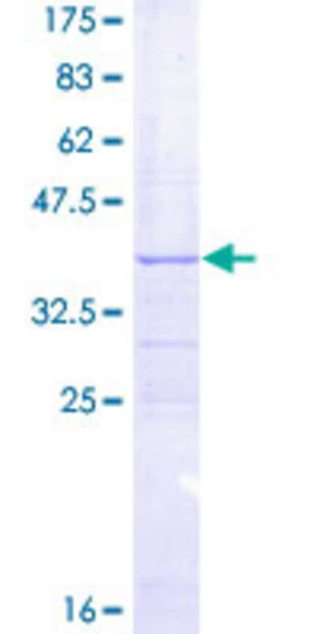 Abnova™Human BCHE Partial ORF (NP_000046, 493 a.a. - 602 a.a.) Recombinant Protein with GST-tag at N-terminal 25μg Abnova™Human BCHE Partial ORF (NP_000046, 493 a.a. - 602 a.a.) Recombinant Protein with GST-tag at N-terminal