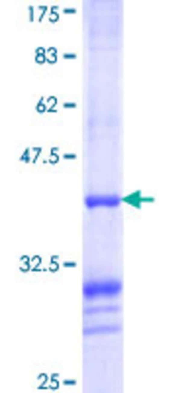Abnova™ Human BCS1L Partial ORF (NP_004319, 320 a.a. - 418 a.a.) Recombinant Protein with GST-tag at N-terminal 10μg Abnova™ Human BCS1L Partial ORF (NP_004319, 320 a.a. - 418 a.a.) Recombinant Protein with GST-tag at N-terminal