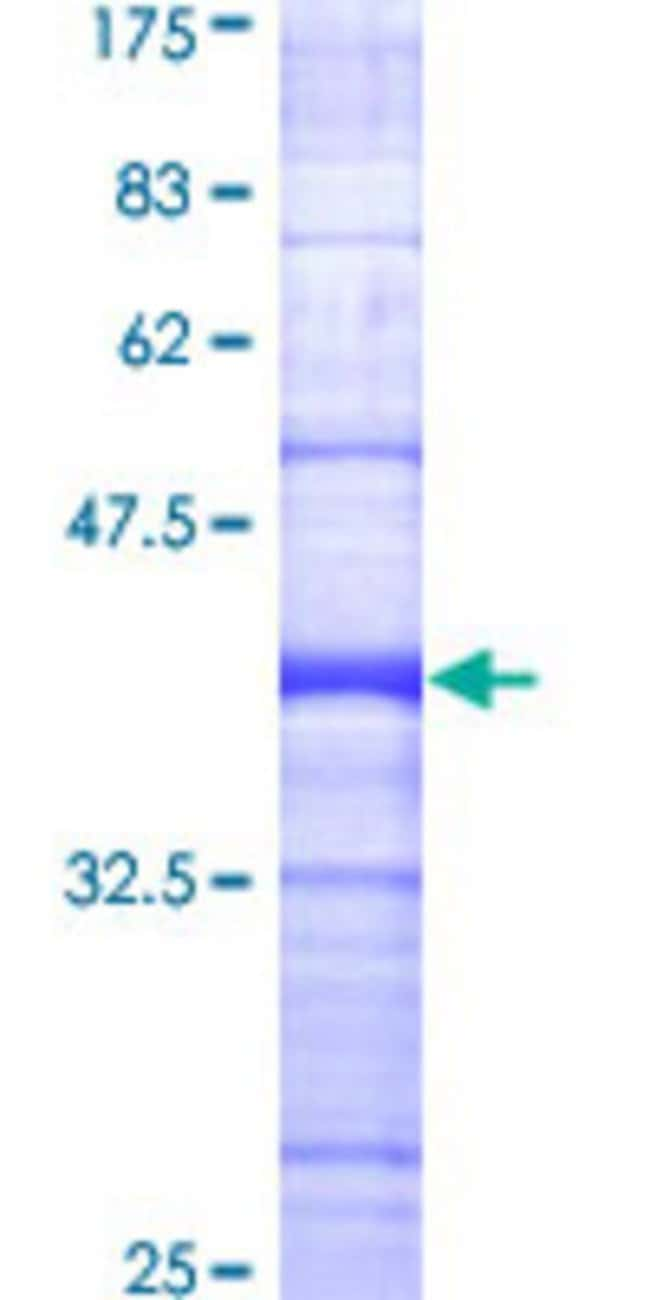 Abnova™Human BIK Partial ORF (AAH01599, 37 a.a. - 136 a.a.) Recombinant Protein with GST-tag at N-terminal 10μg Abnova™Human BIK Partial ORF (AAH01599, 37 a.a. - 136 a.a.) Recombinant Protein with GST-tag at N-terminal