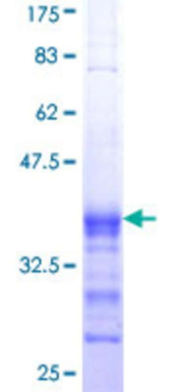 Abnova™Human BLK Partial ORF (AAH07371, 1 a.a. - 90 a.a.) Recombinant Protein with GST-tag at N-terminal 25μg Abnova™Human BLK Partial ORF (AAH07371, 1 a.a. - 90 a.a.) Recombinant Protein with GST-tag at N-terminal
