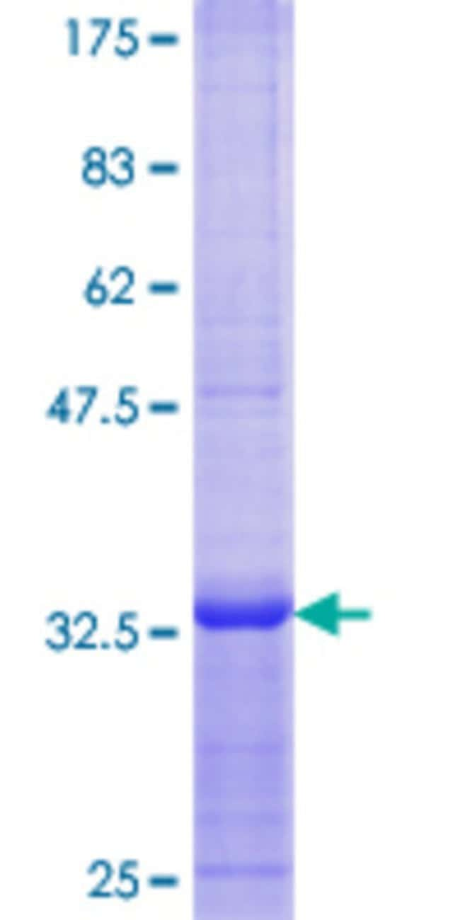 Abnova™Human BMP5 Partial ORF (AAH27958.1, 323 a.a. - 422 a.a.) Recombinant Protein with GST-tag at N-terminal 25μg Abnova™Human BMP5 Partial ORF (AAH27958.1, 323 a.a. - 422 a.a.) Recombinant Protein with GST-tag at N-terminal