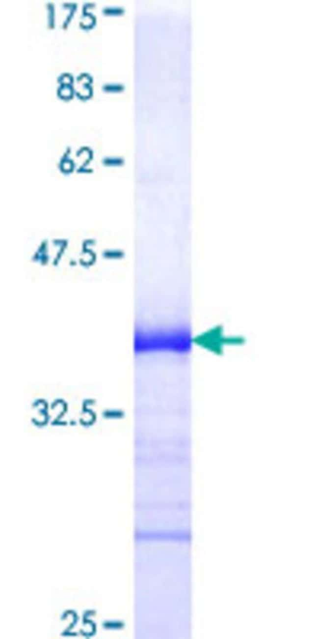 Abnova™Human BMPR1A Partial ORF (AAH28383, 24 a.a. - 113 a.a.) Recombinant Protein with GST-tag at N-terminal 25μg Abnova™Human BMPR1A Partial ORF (AAH28383, 24 a.a. - 113 a.a.) Recombinant Protein with GST-tag at N-terminal
