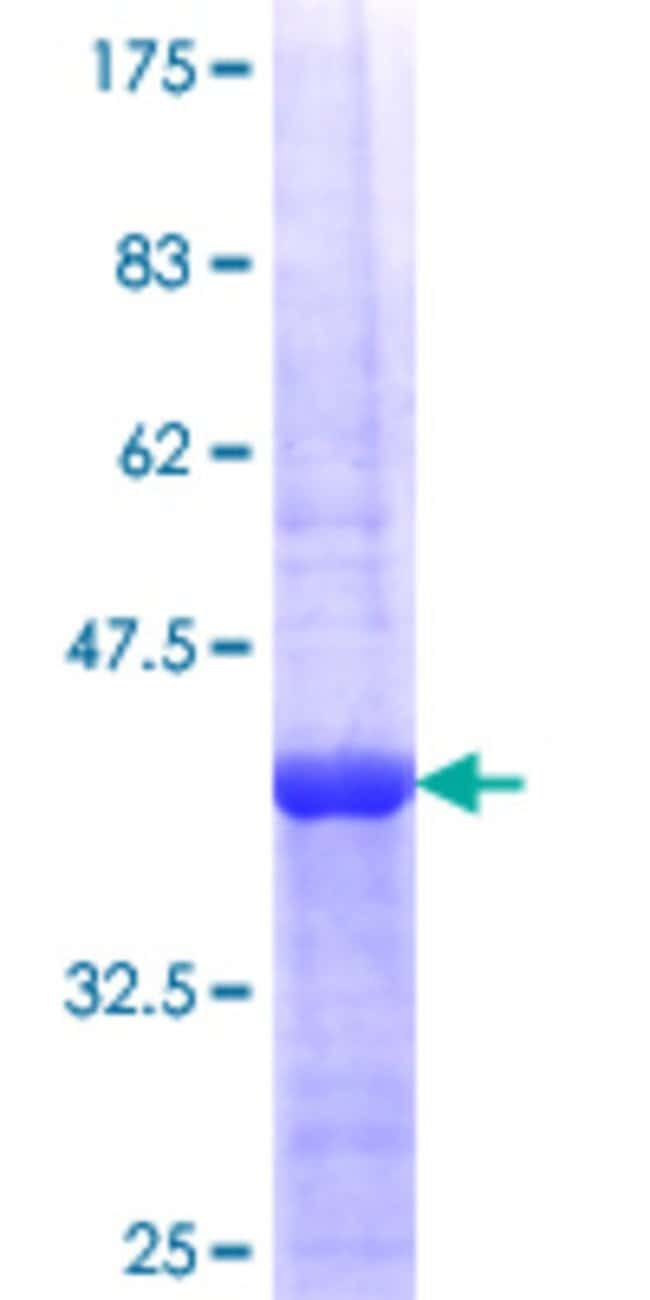 Abnova™Human BMPR2 Partial ORF (NP_001195.2, 939 a.a. - 1037 a.a.) Recombinant Protein with GST-tag at N-terminal 25μg Abnova™Human BMPR2 Partial ORF (NP_001195.2, 939 a.a. - 1037 a.a.) Recombinant Protein with GST-tag at N-terminal