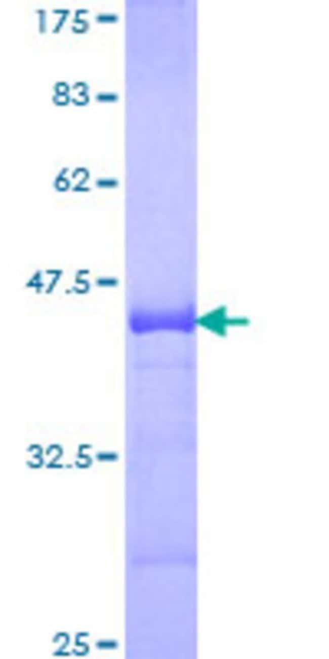 Abnova™Human BNIP3L Partial ORF (NP_004322, 43 a.a. - 130 a.a.) Recombinant Protein with GST-tag at N-terminal 10μg Abnova™Human BNIP3L Partial ORF (NP_004322, 43 a.a. - 130 a.a.) Recombinant Protein with GST-tag at N-terminal