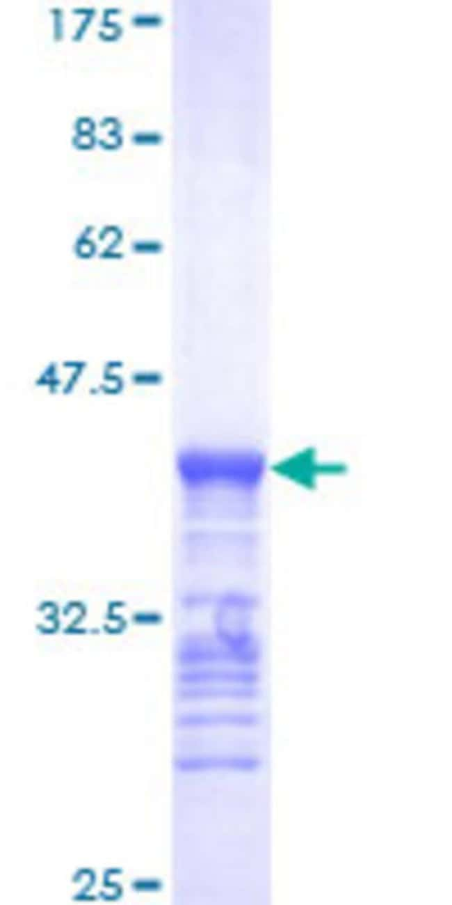 Abnova™ Human BRAF Partial ORF (NP_004324, 346 a.a. - 445 a.a.) Recombinant Protein with GST-tag at N-terminal 10μg Abnova™ Human BRAF Partial ORF (NP_004324, 346 a.a. - 445 a.a.) Recombinant Protein with GST-tag at N-terminal