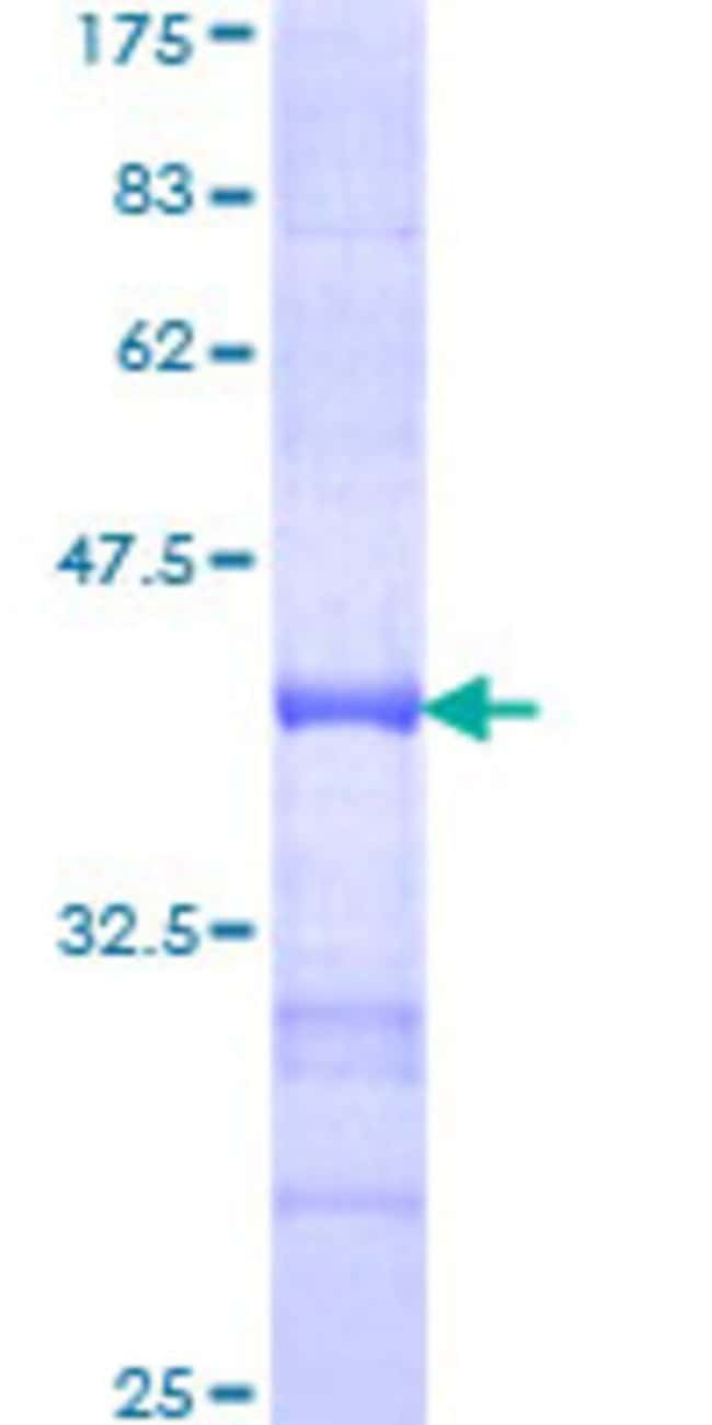 Abnova™Human ZFP36L1 Partial ORF (NP_004917, 1 a.a. - 108 a.a.) Recombinant Protein with GST-tag at N-terminal 25μg Abnova™Human ZFP36L1 Partial ORF (NP_004917, 1 a.a. - 108 a.a.) Recombinant Protein with GST-tag at N-terminal