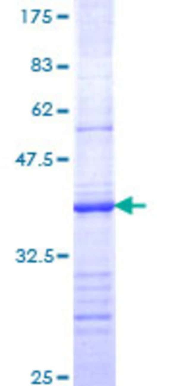 Abnova™Human BRS3 Partial ORF (NP_001718, 290 a.a. - 399 a.a.) Recombinant Protein with GST-tag at N-terminal 25μg Abnova™Human BRS3 Partial ORF (NP_001718, 290 a.a. - 399 a.a.) Recombinant Protein with GST-tag at N-terminal