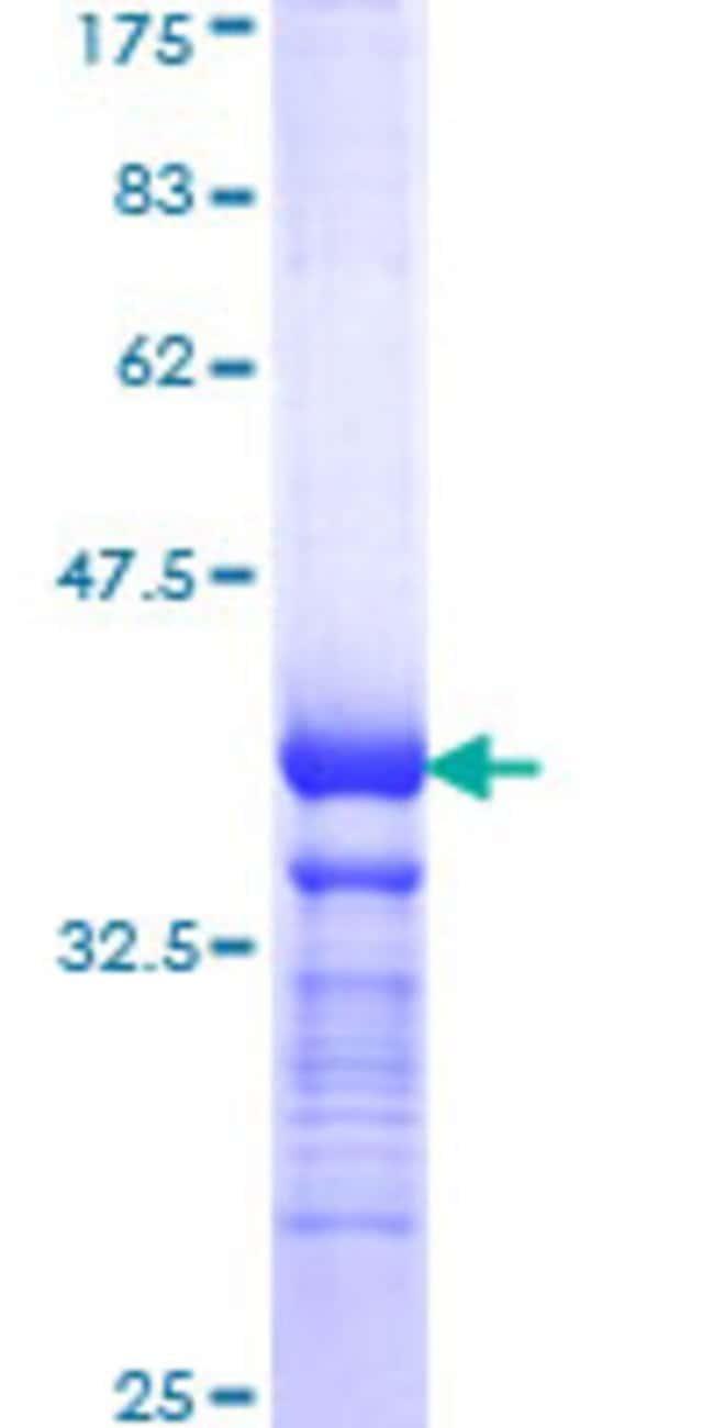 Abnova™Human BSG Partial ORF (NP_001719, 206 a.a. - 305 a.a.) Recombinant Protein with GST-tag at N-terminal 25μg Abnova™Human BSG Partial ORF (NP_001719, 206 a.a. - 305 a.a.) Recombinant Protein with GST-tag at N-terminal