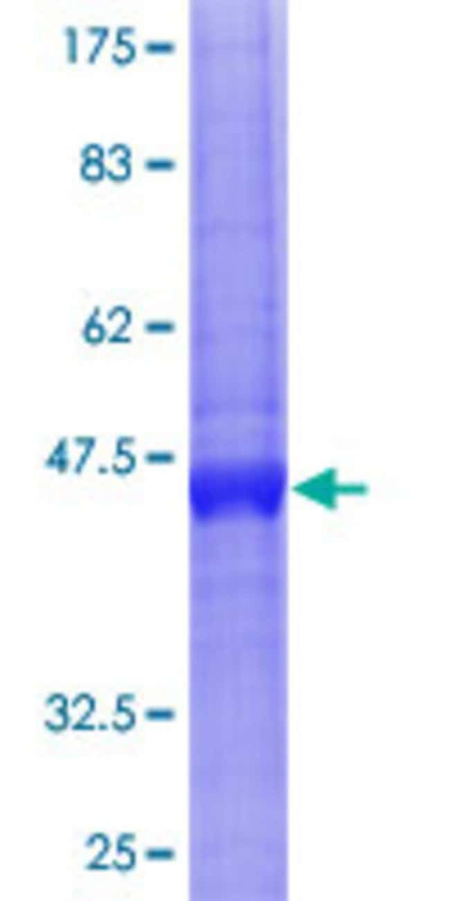 Abnova™Human BST2 Full-length ORF (NP_004326.1, 1 a.a. - 180 a.a.) Recombinant Protein with GST-tag at N-terminal 25μg Abnova™Human BST2 Full-length ORF (NP_004326.1, 1 a.a. - 180 a.a.) Recombinant Protein with GST-tag at N-terminal