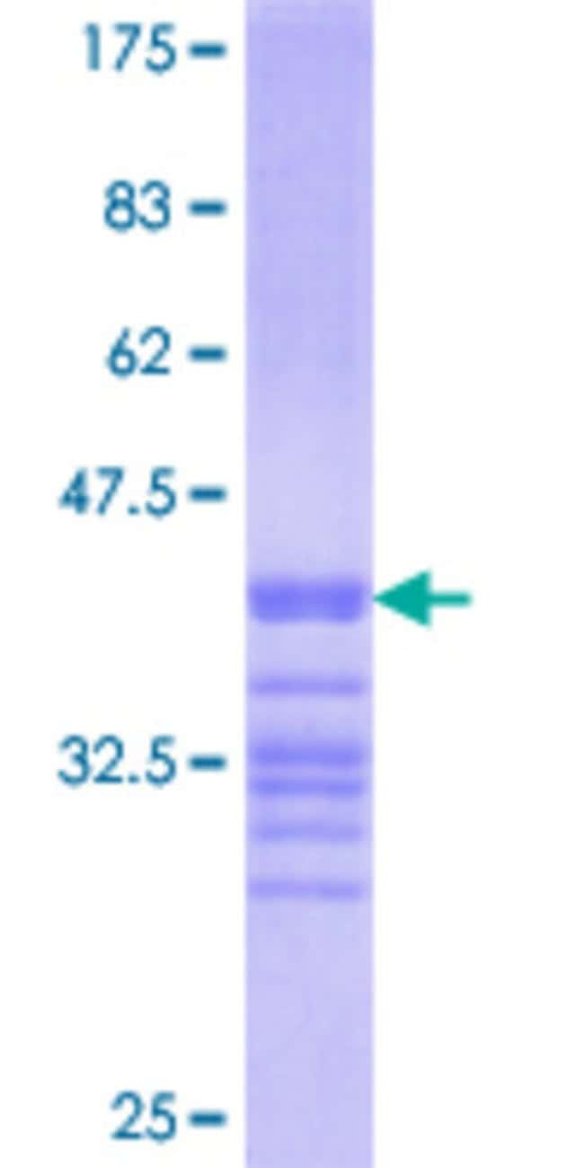 Abnova™ Human BTN1A1 Partial ORF (NP_001723.1, 107 a.a. - 206 a.a.) Recombinant Protein with GST-tag at N-terminal 25μg Abnova™ Human BTN1A1 Partial ORF (NP_001723.1, 107 a.a. - 206 a.a.) Recombinant Protein with GST-tag at N-terminal