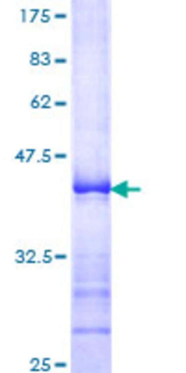 Abnova™Human BUB1B Partial ORF (AAH18739, 1 a.a. - 130 a.a.) Recombinant Protein with GST-tag at N-terminal 10μg Abnova™Human BUB1B Partial ORF (AAH18739, 1 a.a. - 130 a.a.) Recombinant Protein with GST-tag at N-terminal